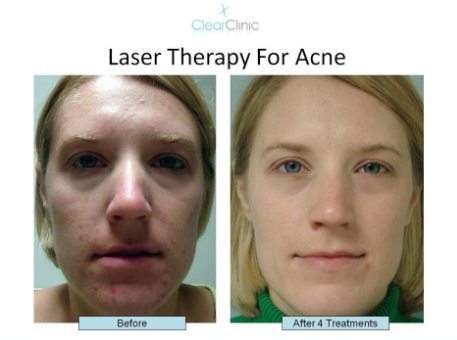 Acne Skin Laser Treatment – Your Hope For an Acne-Free Face For Good