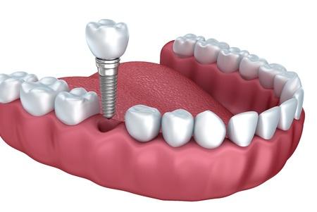Dental_Implants_Sydney