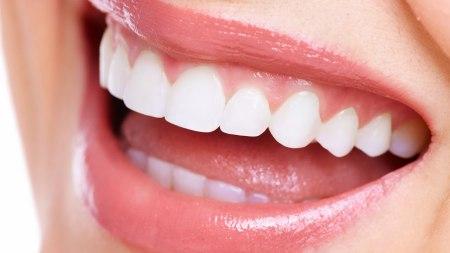 Cosmetic_Dentist_in_Las_Vegas