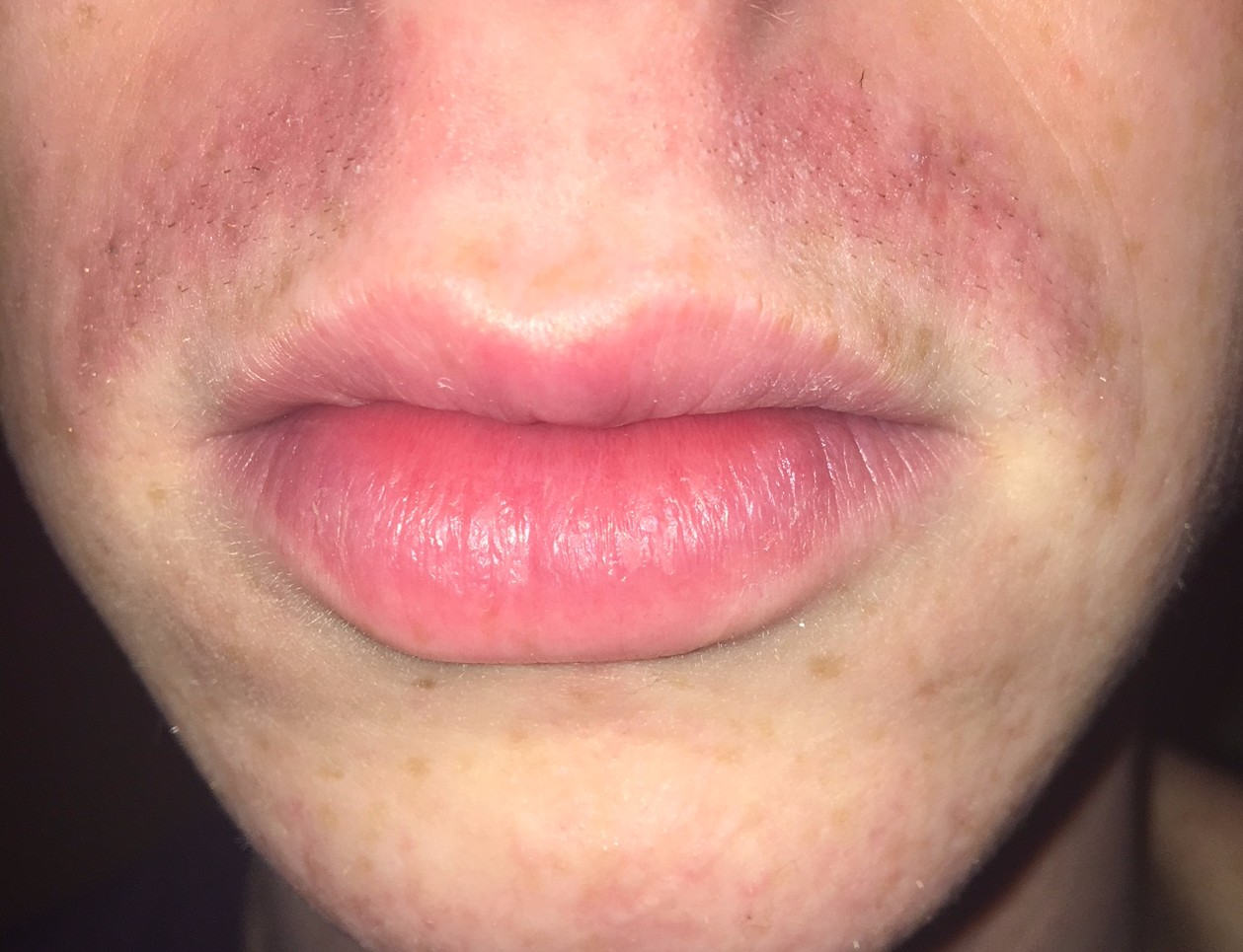 Pimples On Upper Lip After Shaving Decorativestyle Org