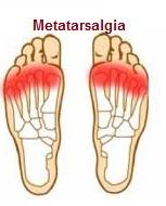 metatarsalgia-fascitis-plantar-dolor-pie-tratamiento