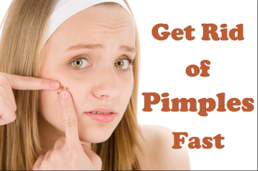 Here! The Fastest way to get rid of a pimple