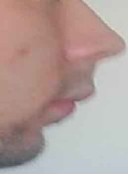profil4