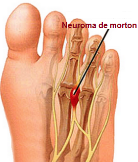 neuroma-morton-fascitis-plantar-dolor-pie-tratamiento-causas