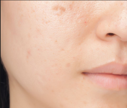 Top 3 Home Remedies That Will Help You in Getting Rid of Pimple Scars