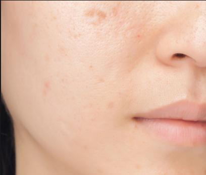 pimple_scars_remedies