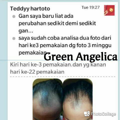 Testimoni_Green_Angelica_Penumbuh_Rambut_112
