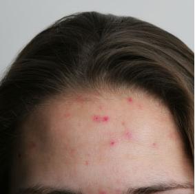 prevent_acne2