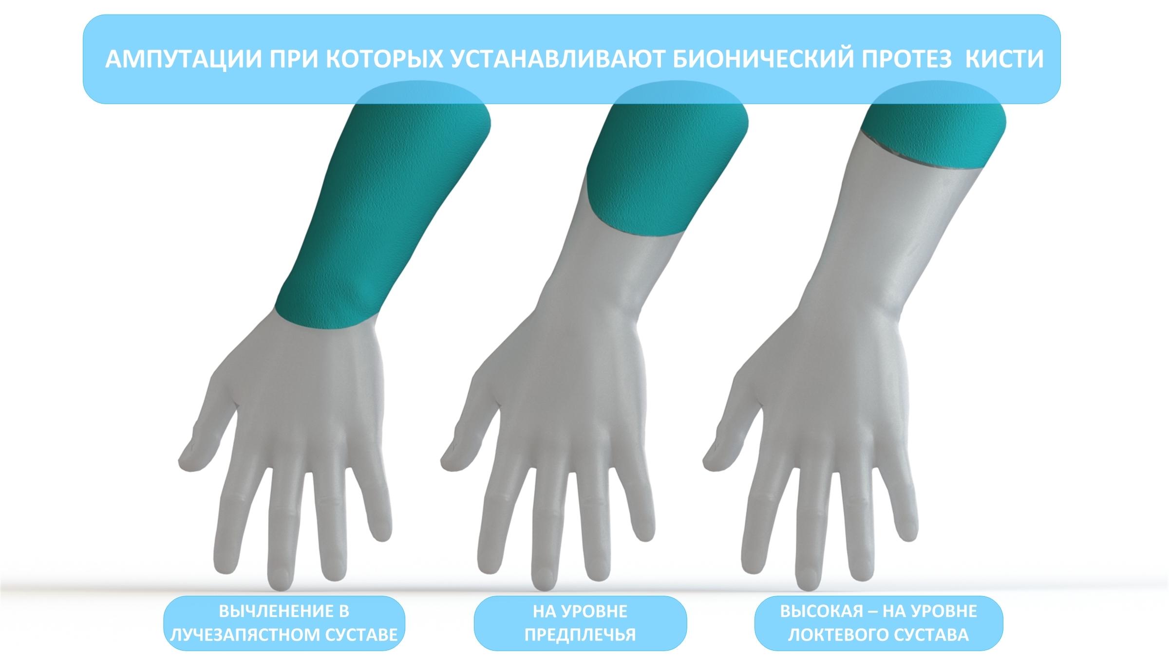 для кого бионика