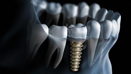 Dental_implants_in_Melbourne