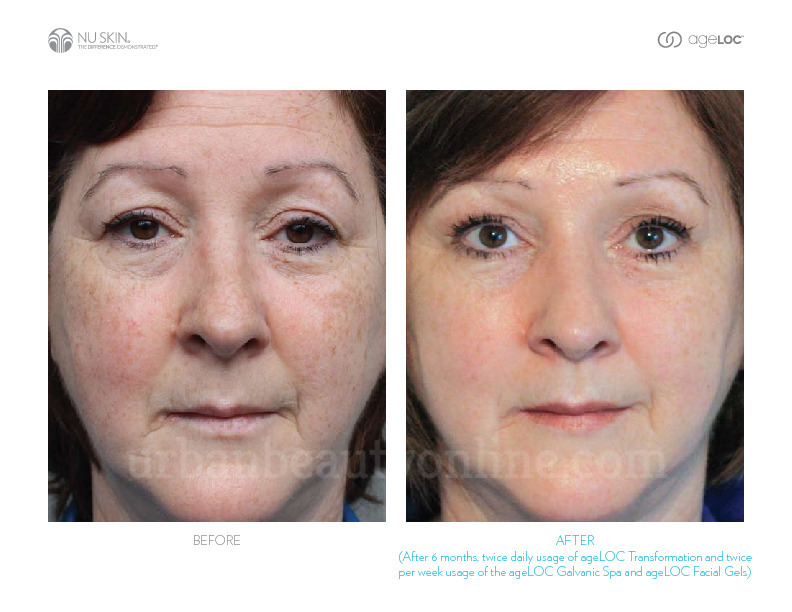 New ageLOC Galvanic Spa System III before after