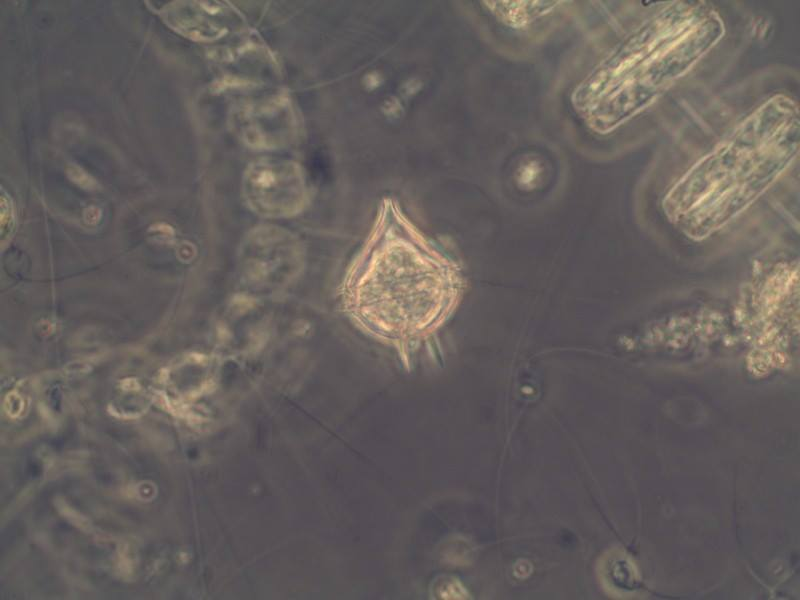 Photo of <em>Protoperidinium steinii</em> by Lyndsey Claassen, WSG