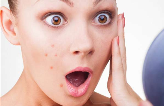 Is Acne Taking Over Your Life? There Are 9 Things You Can Do to Take it Back