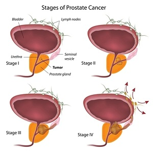Kansas City Urology Care Offers Varied Effective Treatment Options for Prostate Cancer