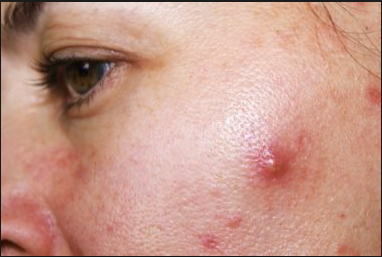 cysts_acne_causes