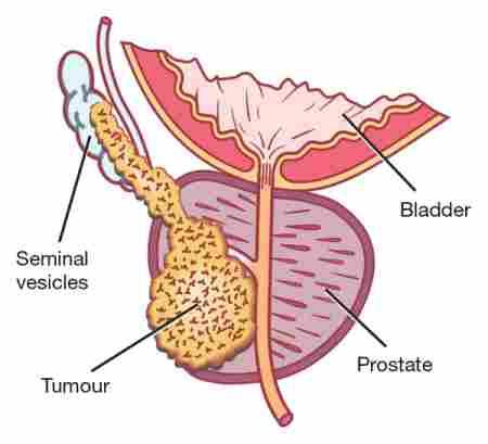 Prostate Cancer in Kansas City
