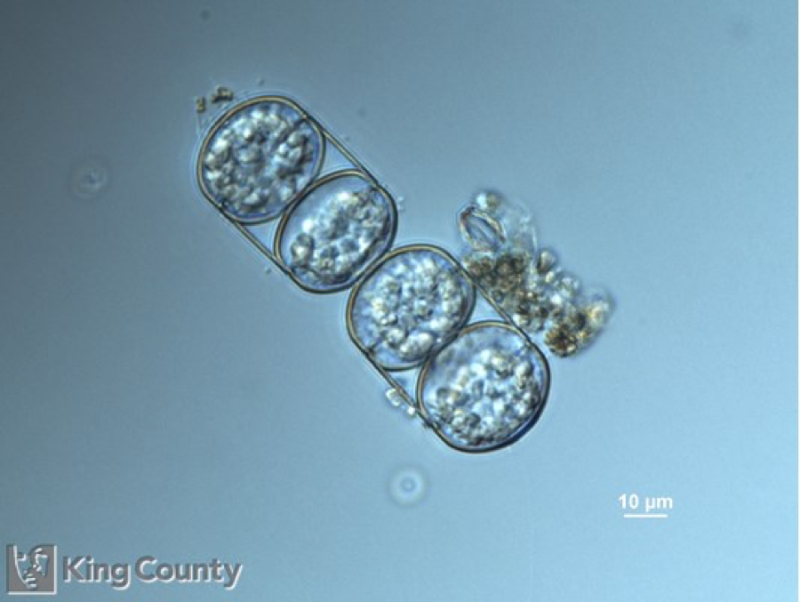 Photo of <em>Melosira moniformis</em> by Gabriela Hannach, King County Environmental Lab