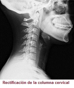 Hormigueo constante en la parte posterior de la cabeza