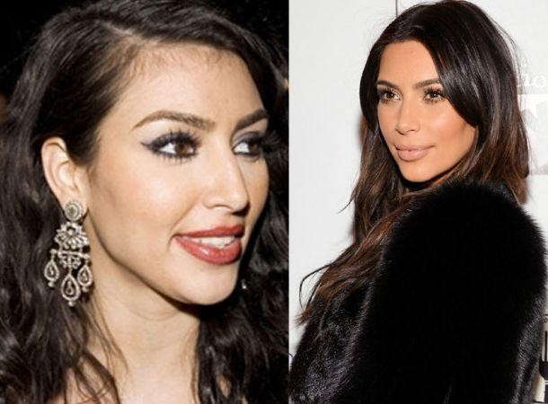 Kim_Kardashian_operacion_de_nariz